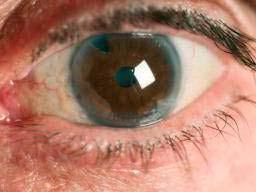 glaucoma blindness 3 - Cegueira pelo glaucomapode ser evitadacom diagnóstico precoce