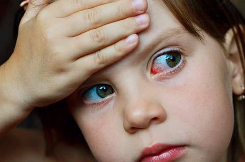 conjutivite - Surto de conjuntivite em Caldas Novas – GO causa alerta sobre a doença