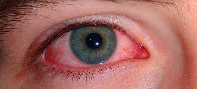 olho vermelho - Saiba o que é e como evitar a conjuntivite