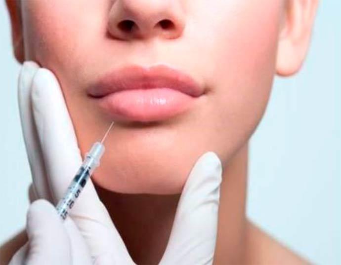 Os riscos e vantagens do preenchimento labial - Riscos e vantagens do preenchimento labial