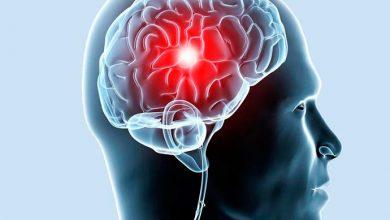 avc 390x220 - AVC isquêmico: desobstrução da artéria em até seis horas