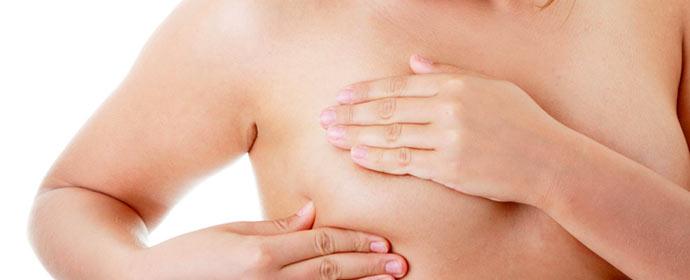 cancer mama - Dicas para prevenção do câncer de mama