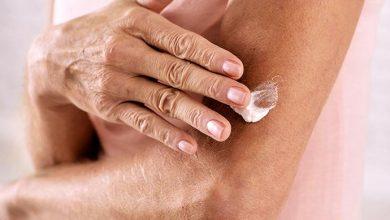 pele 1 390x220 - Linfoma Cutâneo de Células T: câncer raro de sangue também tem manifestações na pele