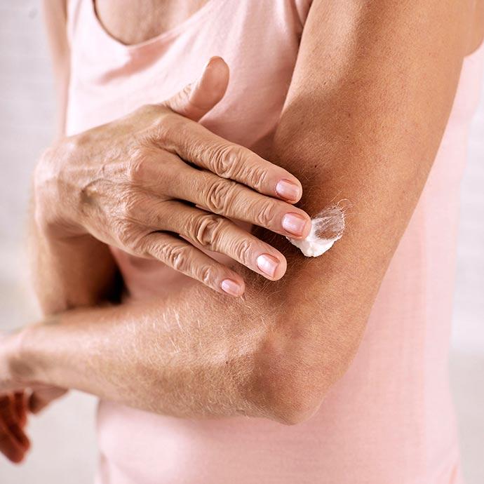 pele 1 - Linfoma Cutâneo de Células T: câncer raro de sangue também tem manifestações na pele