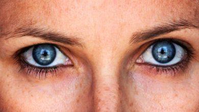rosto8 390x220 - Tratamentos para tirar as manchas do rosto