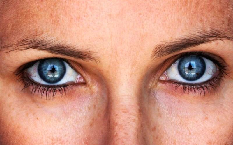 rosto8 - Tratamentos para tirar as manchas do rosto
