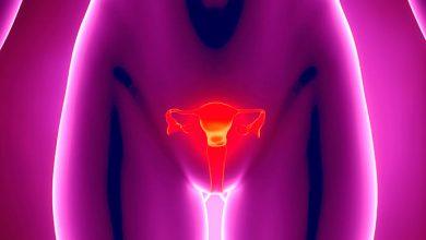 utero 390x220 - Útero aumentado pode ser adenomiose
