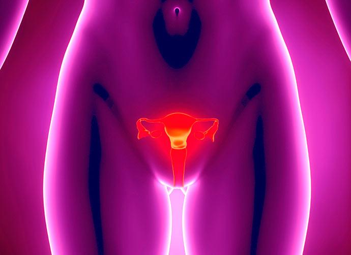 utero - Útero aumentado pode ser adenomiose