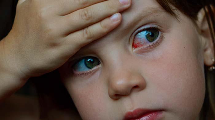 Cruabça com conjuntivite escola - Crianças com conjuntivite podem frequentar a escola?