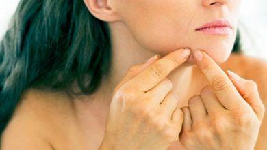 acn1 390x220 - Acne adulta está relacionada a alterações hormonais e estresse