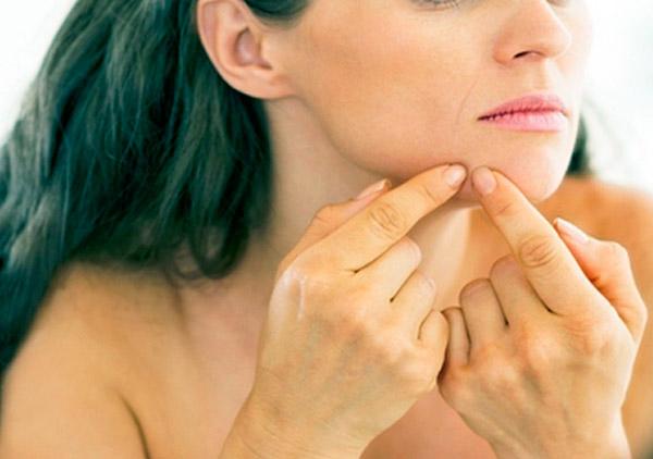 acn1 - Acne adulta está relacionada a alterações hormonais e estresse