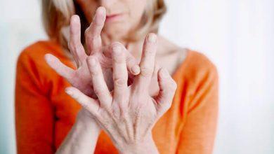 artr 390x220 - Osteoartrite: 70 % da população com mais de 65 anos tem a doença