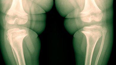 joe3 390x220 - Aumento da obesidade impacta joelho dos brasileiros