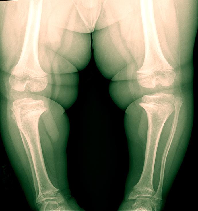 joe3 - Aumento da obesidade impacta joelho dos brasileiros
