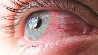 olho 390x220 - Irritação nos olhos: dicas de prevenção
