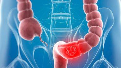 cancer 390x220 - Sintomas e tratamentos do câncer colorretal