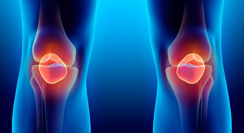 condromalacia patelar - Joelhos: exercícios de fortalecimento evitam condromalácia patelar