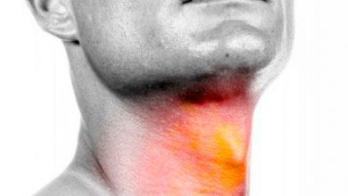 larin 390x220 - Câncer de Laringe: 80% são registrados em homens