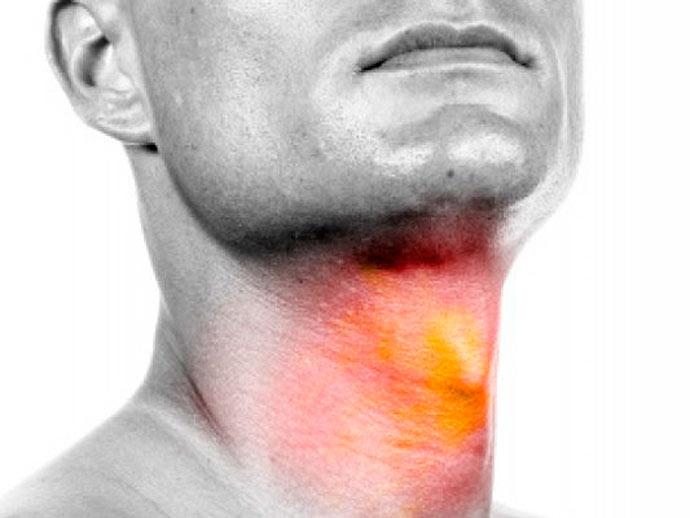 larin - Câncer de Laringe: 80% são registrados em homens