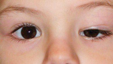 ptose1 390x220 - Queda das pálpebras pode afetar visão e causar cansaço visual
