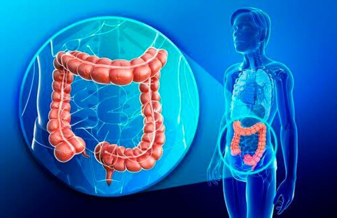 doença de Crohn - Maio Roxo: conheça a doença de Crohn