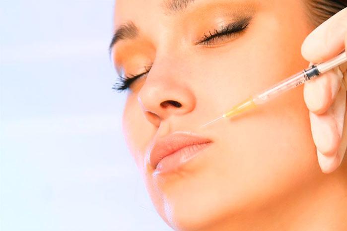 facial - Toxina botulínica ou preenchimento com ácido hialurônico?