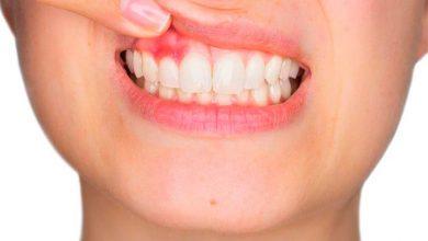 Revista News gengivite-e-a-periodontite-390x220 Estresse pode levar à perda dos dentes