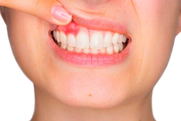 gengivite e a periodontite - Estresse pode levar à perda dos dentes