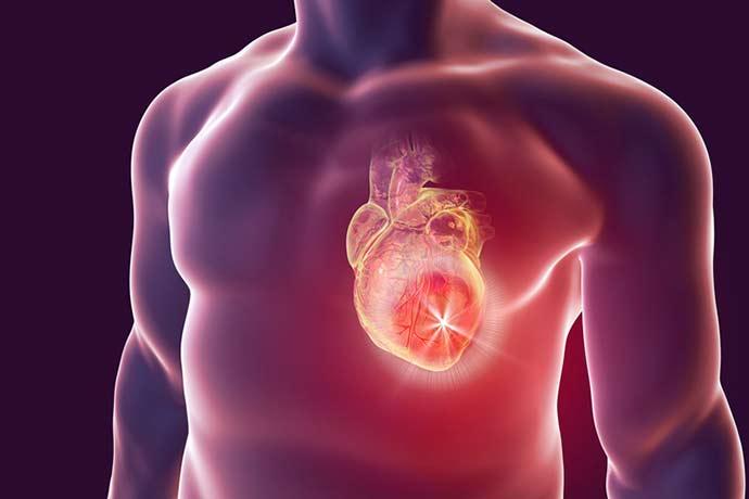 insuficiencia cardiaca - Pacientes com insuficiência cardíaca e diabetes também podem ter mais complicações renais
