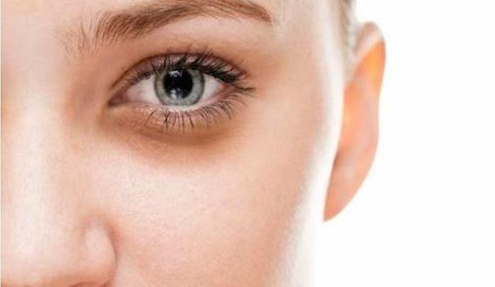 olheiras 699x405 - Olheiras: dermatologista indica os melhores procedimentos
