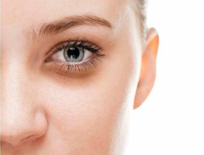 olheiras - Olheiras: dermatologista indica os melhores procedimentos