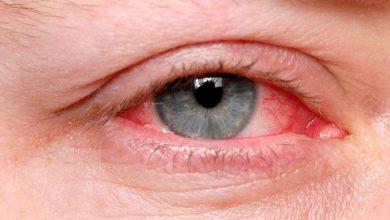 olhos1 390x220 - Olhos: excesso de remela pode indicar problemas