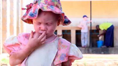 albinos 390x220 - ONU alerta para estigma e exclusão social contra pessoas albinas