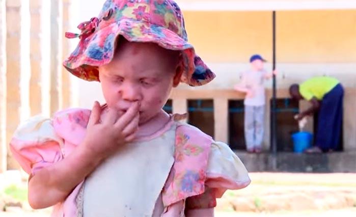 albinos - ONU alerta para estigma e exclusão social contra pessoas albinas