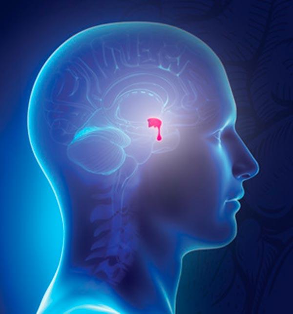 neuro - Acromegalia: desconhecimento atrasa diagnóstico