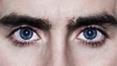 olhos22 390x220 - Cirurgia refrativa: oftalmologistas respondem dúvidas mais comuns
