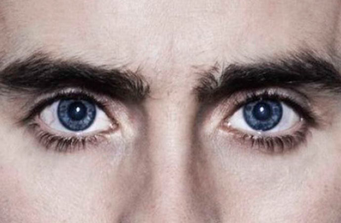 olhos22 - Cirurgia de calázio: quando o procedimento é necessário?