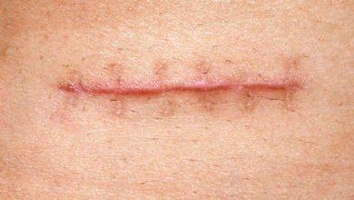 cicatriz 390x220 - Cicatrização: como acelerar o processo e amenizar a aparência