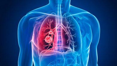 tuberculose 390x220 - Tuberculose: especialista fala sobre sintomas e prevenção