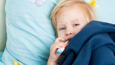 Photo of OMS: casos de sarampo chegam a número recorde na Europa