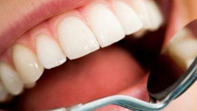 dentes 390x220 - Saúde bucal influencia doenças sistêmicas como o diabetes