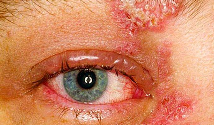 herpes 690x405 - Herpes pode afetar os olhos e pálpebras