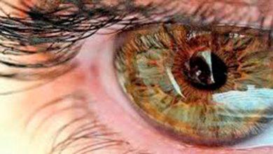 Photo of Neurite ótica pode ser indicar Esclerose Múltipla