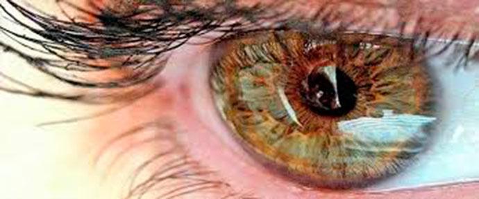 olho - Neurite ótica pode ser indicar Esclerose Múltipla