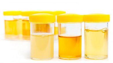 urin 390x220 - Cor da urina mostra se estamos hidratados ou não