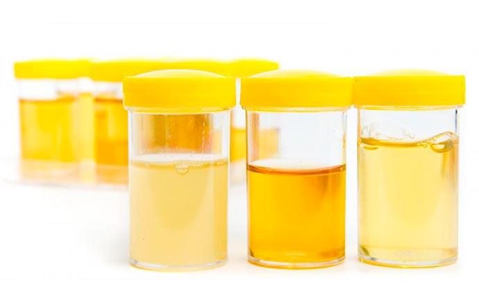 urin - Cor da urina mostra se estamos hidratados ou não
