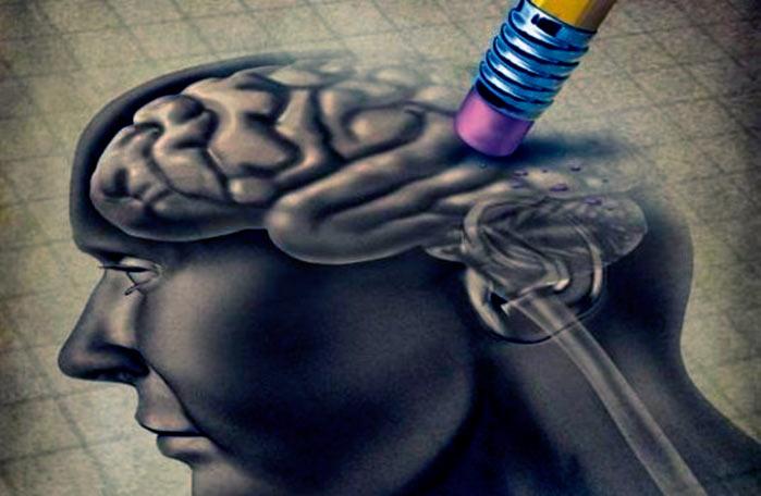 alzheimer - Sinais que podem indicar o Alzheimer