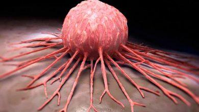 celulas cancer 390x220 - Câncer de mama: origem hereditária representa menos de 10% dos casos