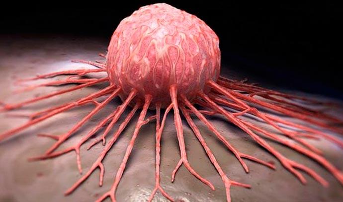 celulas cancer - Câncer de mama: origem hereditária representa menos de 10% dos casos