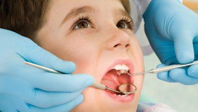 dente siso 3 390x220 - A dúvida de extrair ou não os dentes sisos